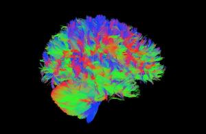 Image d'une IRM de diffusion montrant les connexions sur l'ensemble du cerveau & du cervelet © D. Sappey-Marinier, CERMEP